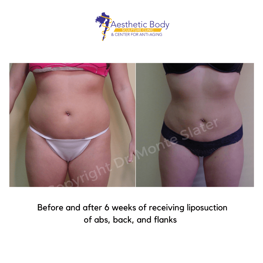 Before and after liposuction by Dr. Monte Slater 6 weeks post op - abs flanks and back