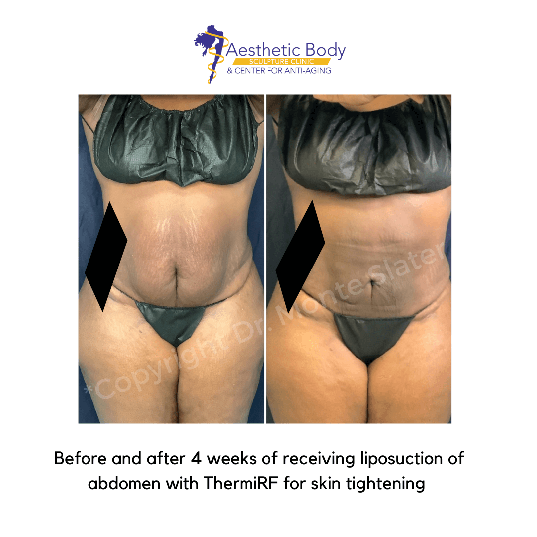 Before and after liposuction of the abs